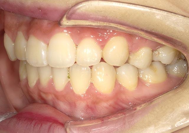 出っ歯(口ゴボ)】でお悩みの方。矯正でも手術でもキレイに治ります